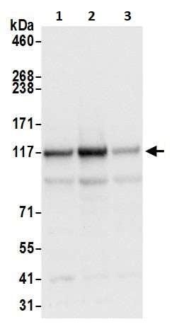 Western blot - Anti-HIP1 antibody (ab264377)