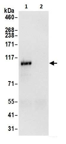 Immunoprecipitation - Anti-HIP1 antibody (ab264377)