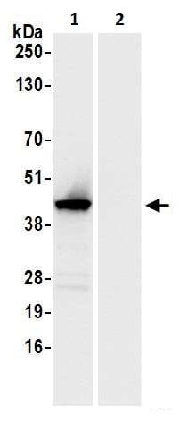 Immunoprecipitation - Anti-ADA antibody (ab264378)