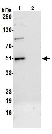 Immunoprecipitation - Anti-TCPTP antibody (ab264379)