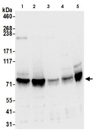 Western blot - Anti-FMRP antibody (ab264380)