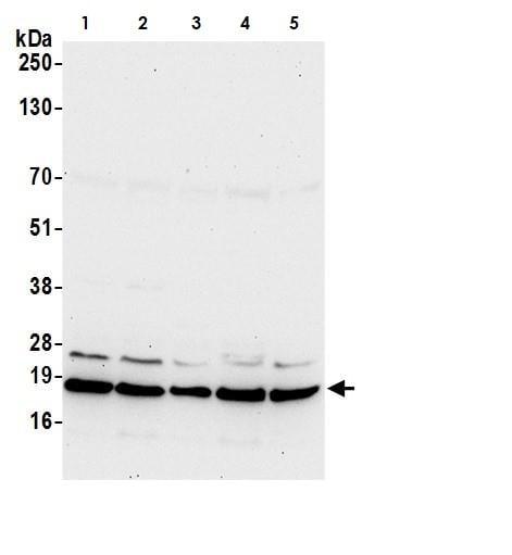Western blot - Anti-ARF6 antibody (ab264381)