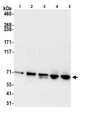 Western blot - Anti-ERp72 antibody (ab264386)