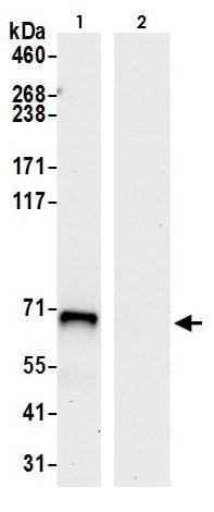 Immunoprecipitation - Anti-ACSS2 antibody (ab264390)