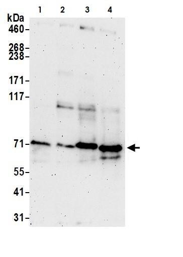 Western blot - Anti-ACSS2 antibody (ab264391)