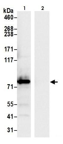 Immunoprecipitation - Anti-Aconitase 2 antibody (ab264393)