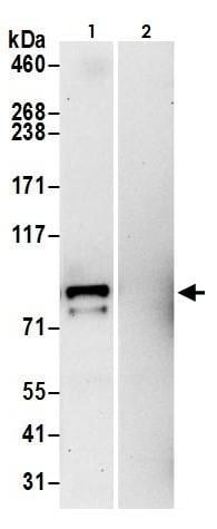 Immunoprecipitation - Anti-Aconitase 2 antibody (ab264394)
