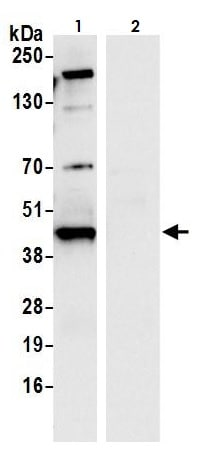 Immunoprecipitation - Anti-Glutamine Synthetase antibody (ab264395)