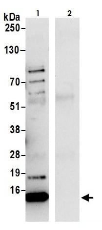 Immunoprecipitation - Anti-HINT1 antibody (ab264398)