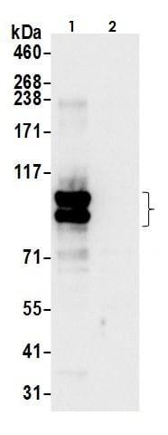 Immunoprecipitation - Anti-ABCD1/ALD antibody (ab264399)