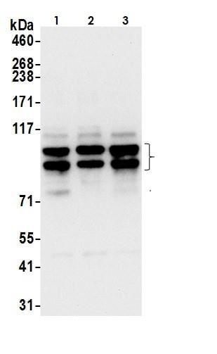 Western blot - Anti-ABCD1/ALD antibody (ab264399)