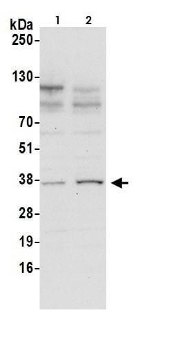 Western blot - Anti-DDAH1 antibody (ab264400)