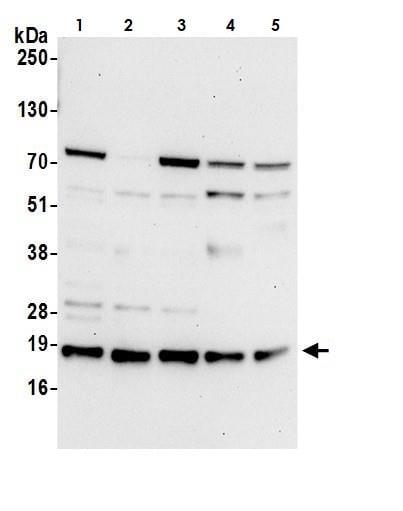 Western blot - Anti-ARMET/ARP antibody (ab264402)