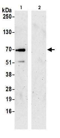 Immunoprecipitation - Anti-FBSH antibody (ab264404)
