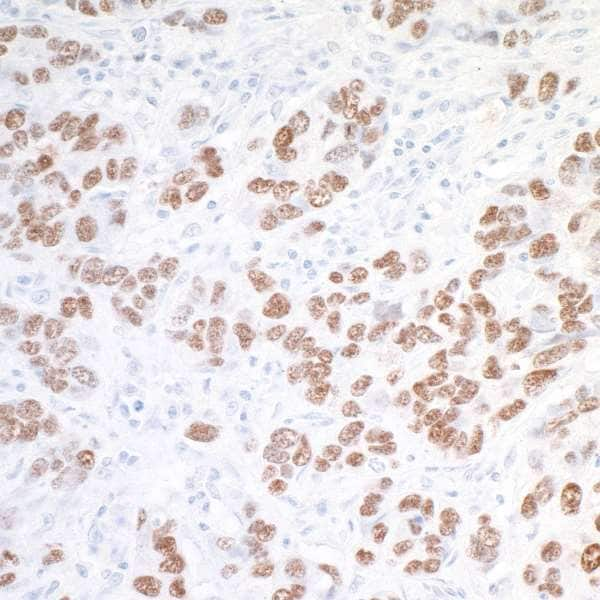Immunohistochemistry (Formalin/PFA-fixed paraffin-embedded sections) - Anti-SOX10 antibody (ab264405)