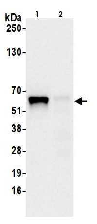 Immunoprecipitation - Anti-METTL14 antibody (ab264408)