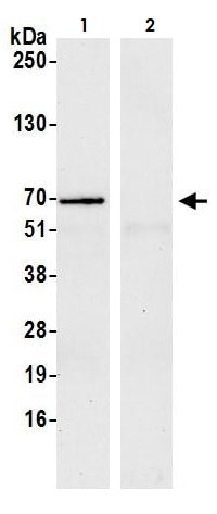 Immunoprecipitation - Anti-YTHDF1 antibody (ab264409)
