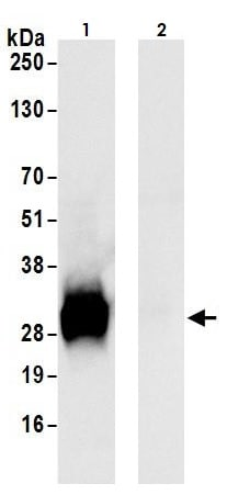 Immunoprecipitation - Anti-CTHRC1 antibody (ab264410)