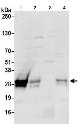 Western blot - Anti-CTHRC1 antibody (ab264411)