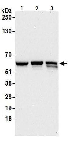 Western blot - Anti-CARD9 antibody (ab264412)