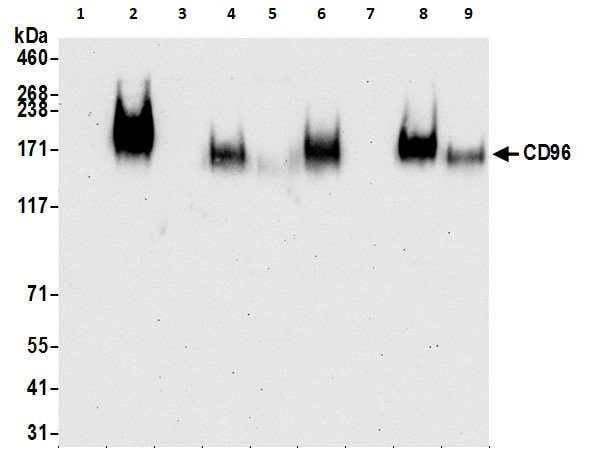 Western blot - Anti-CD96 antibody [BLR065G] - BSA free (ab264416)