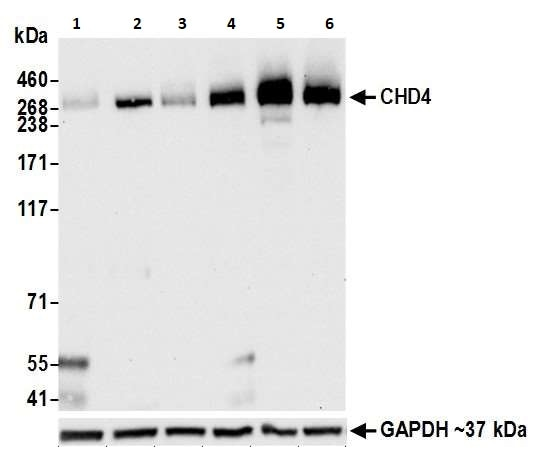 Western blot - Anti-CHD4 antibody [BLR066G] (ab264417)