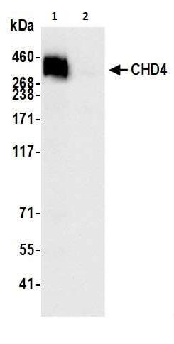 Immunoprecipitation - Anti-CHD4 antibody [BLR066G] (ab264417)