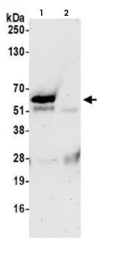 Immunoprecipitation - Anti-TFEB antibody [BLR070G] (ab264421)