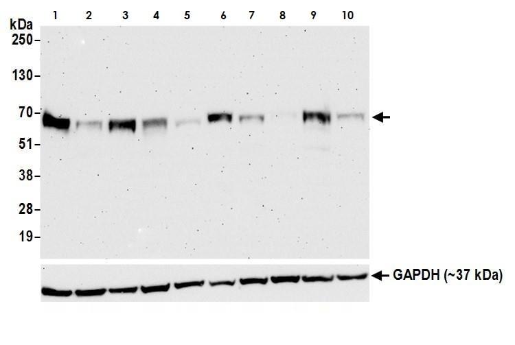 Western blot - Anti-TFEB antibody [BLR070G] (ab264421)