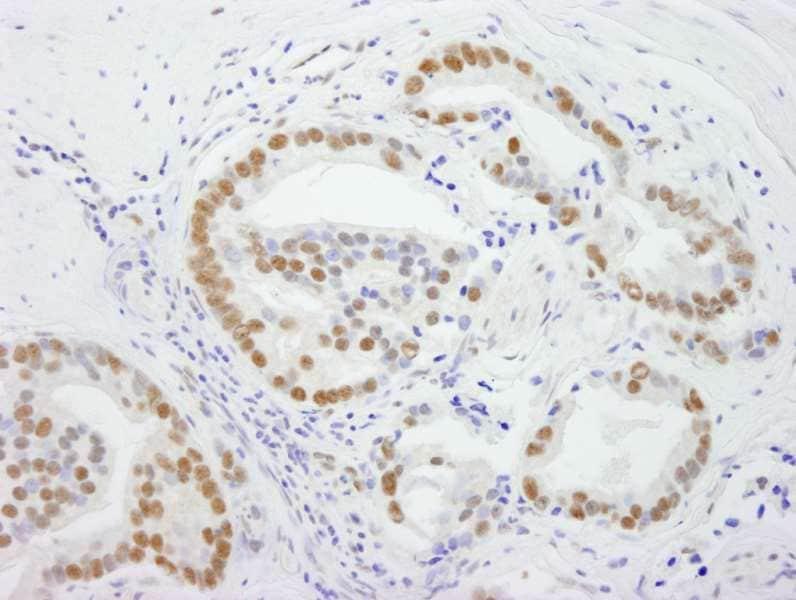 Immunohistochemistry (Formalin/PFA-fixed paraffin-embedded sections) - Anti-DDX5 antibody (ab264424)