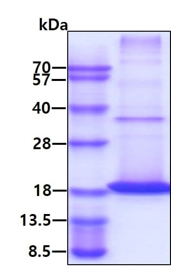 SDS-PAGE - Recombinant mouse RANKL protein (Active) (ab264458)