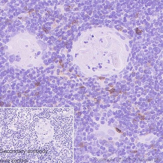 Immunohistochemistry (Formalin/PFA-fixed paraffin-embedded sections) - Anti-CD134 / OX40L receptor antibody [EPR23000-42] - BSA and Azide free (ab264470)