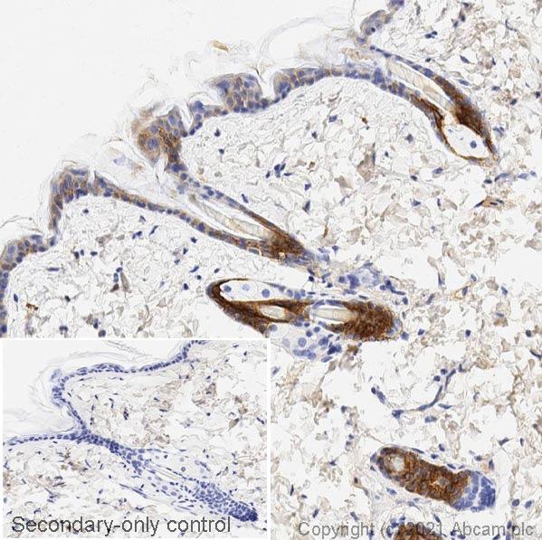Immunohistochemistry (Formalin/PFA-fixed paraffin-embedded sections) - Anti-pan Cytokeratin antibody [C-11] - BSA and Azide free (ab264485)