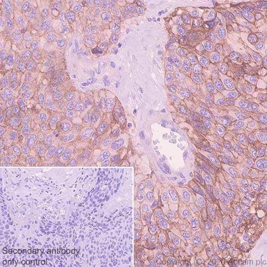 Immunohistochemistry (Formalin/PFA-fixed paraffin-embedded sections) - Anti-EGFR antibody [EMab-134] (ab264540)
