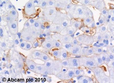 Immunohistochemistry (Formalin/PFA-fixed paraffin-embedded sections) - Anti-ABCA1 antibody [HJ1] - BSA and Azide free (ab264550)