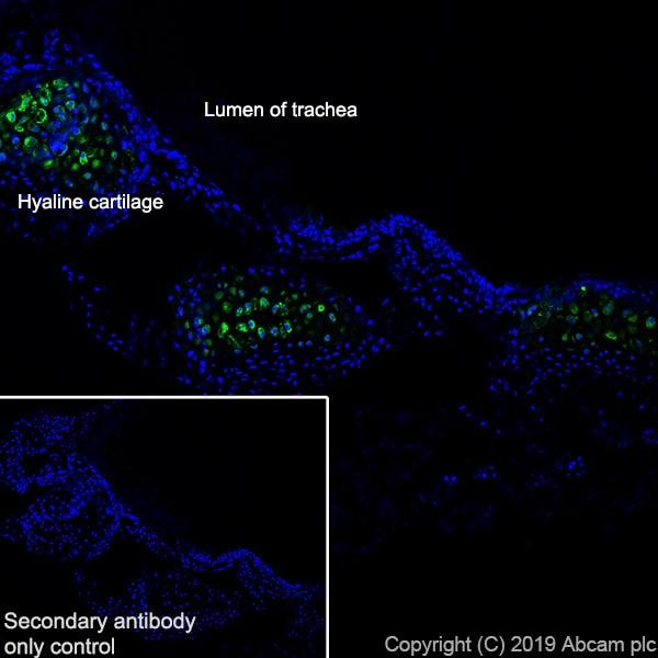 Immunohistochemistry (Frozen sections) - Anti-Collagen X antibody [EPR22920-211] - BSA and Azide free (ab264571)
