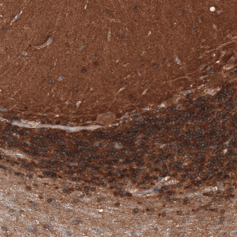 Immunohistochemistry (Formalin/PFA-fixed paraffin-embedded sections) - Anti-Renin Receptor antibody (ab264763)