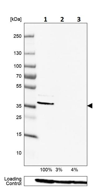 Western blot - Anti-Renin Receptor antibody (ab264763)