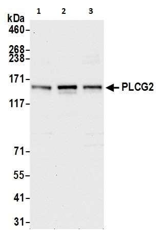 Western blot - Anti-PLCG 2 antibody (ab265582)