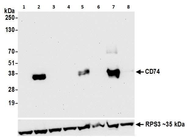 Western blot - Anti-CD74 antibody [LN2] (ab265584)