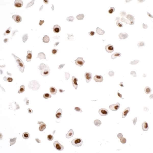 Immunocytochemistry/ Immunofluorescence - Anti-PCNA antibody [PC10] (ab265585)