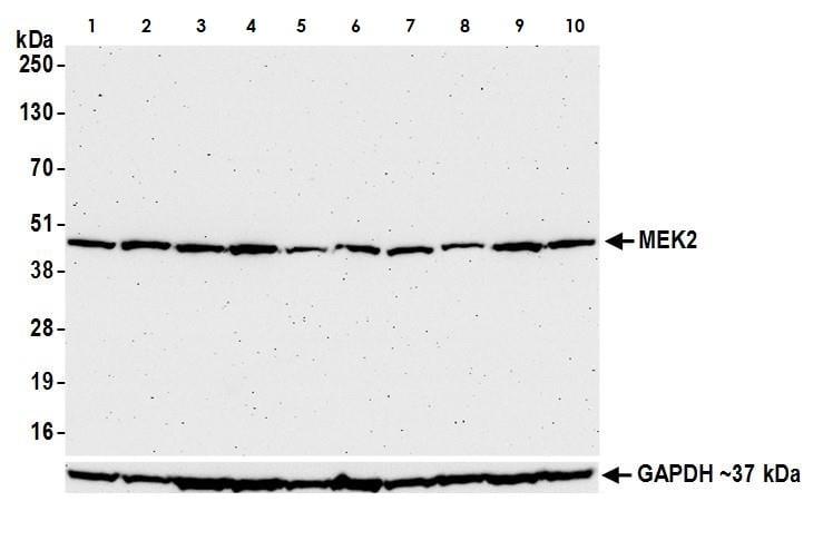 Western blot - Anti-MEK2 antibody (ab265586)