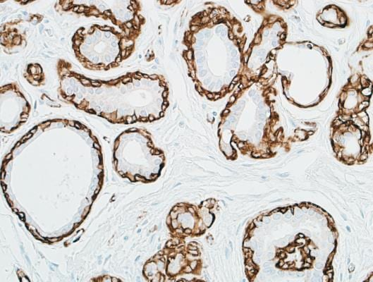Immunohistochemistry (Formalin/PFA-fixed paraffin-embedded sections) - Anti-alpha smooth muscle Actin antibody (ab265588)