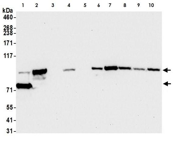 Western blot - Anti-beta Catenin antibody (ab265591)
