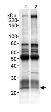Immunoprecipitation - Anti-PARK7/DJ1 antibody (ab265596)