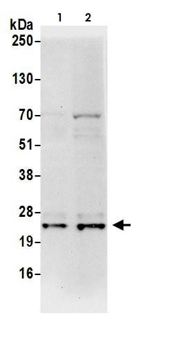 Western blot - Anti-PARK7/DJ1 antibody (ab265596)