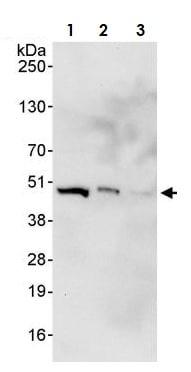 Western blot - Anti-MEK2 antibody (ab265601)