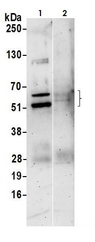 Immunoprecipitation - Anti-PAX6 antibody (ab265608)
