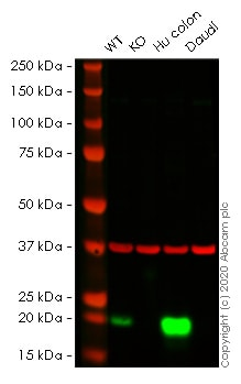 Western blot - Human MYL9 knockout HeLa cell line (ab266036)