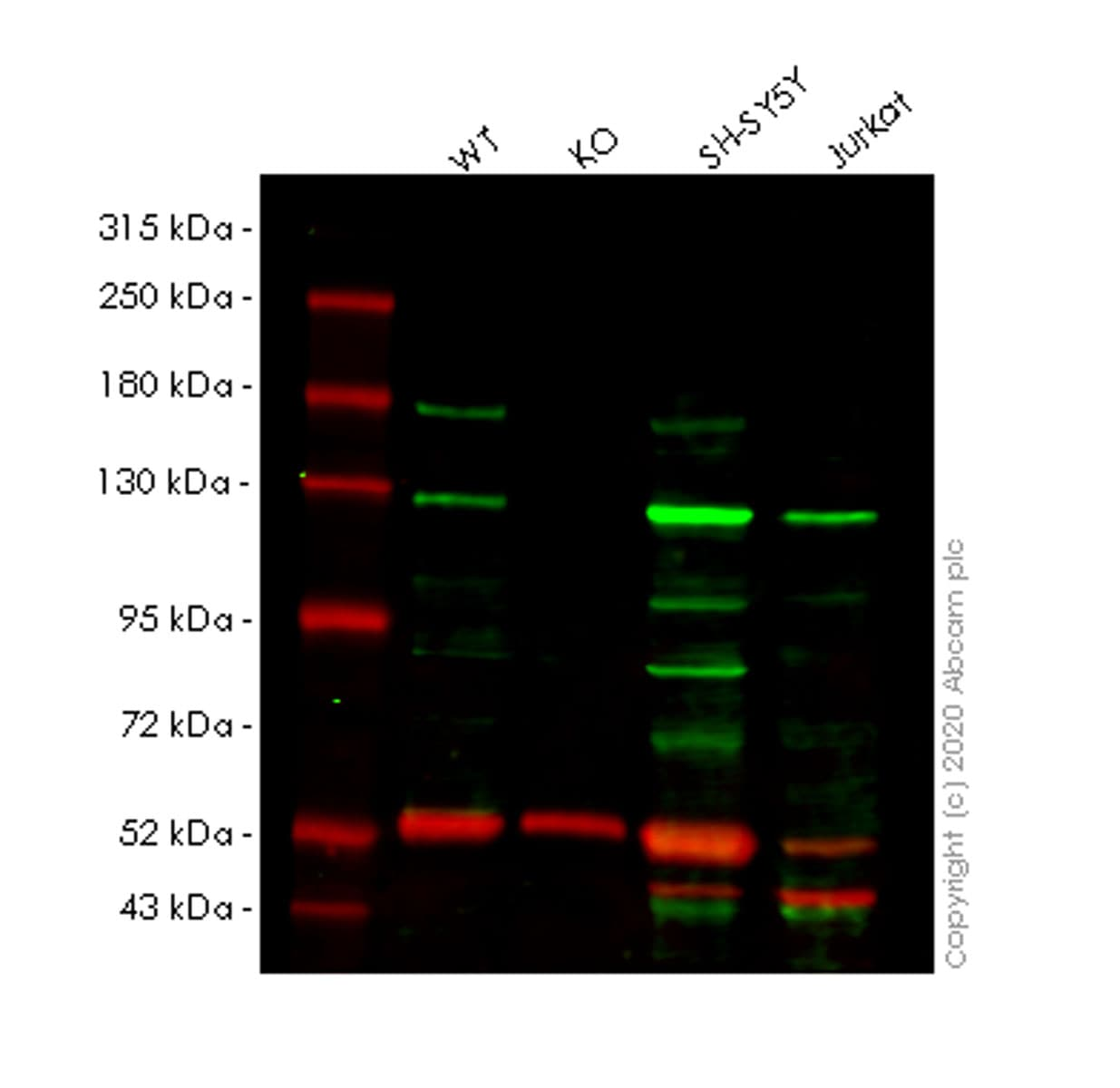 Western blot - Human PKN1 knockout HEK293T cell line (ab266599)